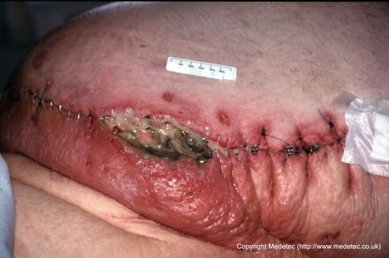 infected dehisced surgical wound to abdomen in obese patient close up