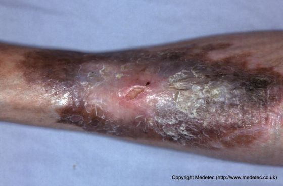 Venous leg ulcer with typical skin staining