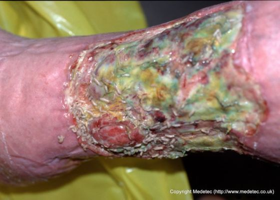 Pseudomonas Infection Treatment & Management: Medical Care ...