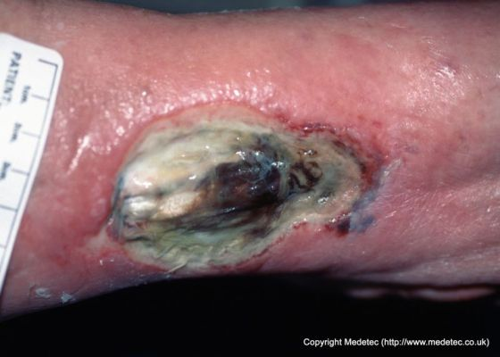 infected surgical wound #10